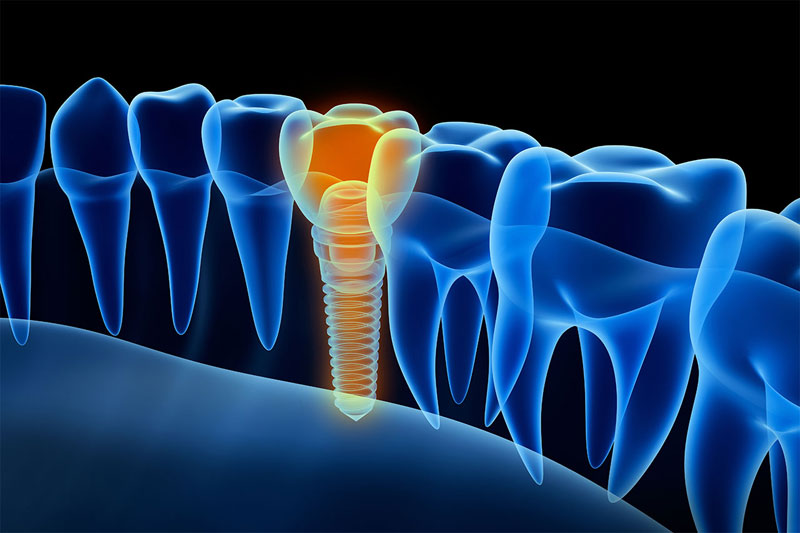 Dana Point Dental Implants