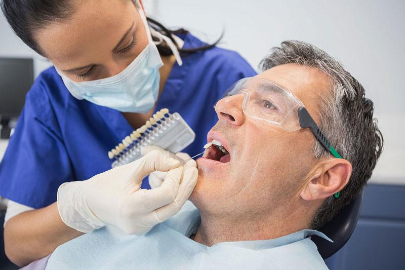 Teeth Whitening and Bleaching